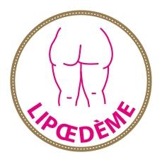 Informations générales sur le lipœdème